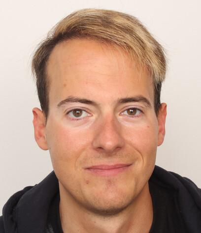 Ein Patient nach Moser Medical vor seiner Haartransplantation an der Stirnzone und den Geheimratsecken