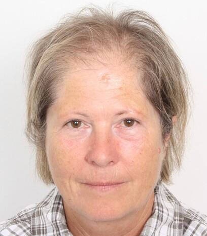 Eine Patientin von Moser Medical vor ihrer Haartransplantation