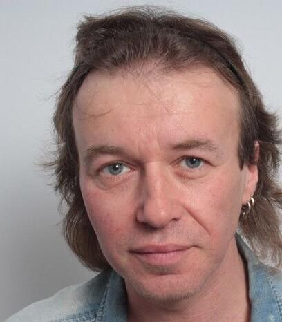 Ein Patient von Moser Medical nach der Haarverpflanzung an den Geheimratsecken