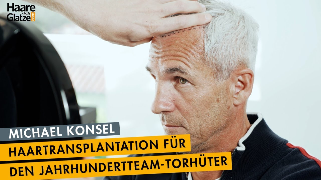 Michael Konsel - So lief seine Haartransplantation bei Moser Medical ab | Full Version