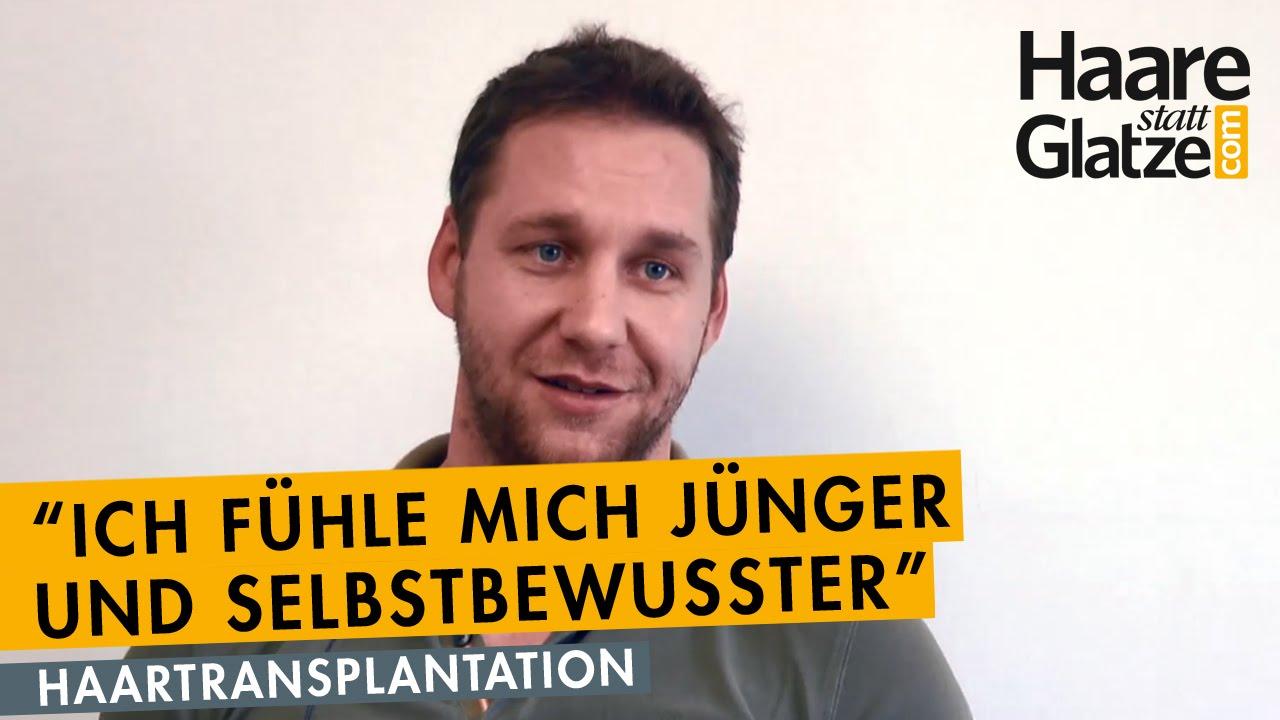Bulgare spricht über seine Haartransplantation in Wien