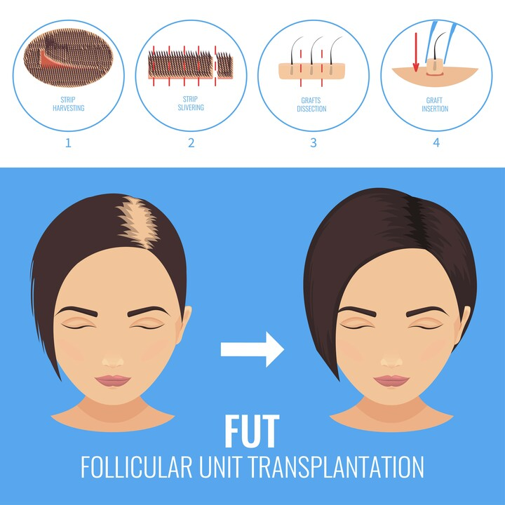 Skizzierung der FUT-Technik von Moser bei einer Frau mit Haarausfall