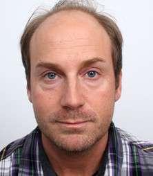 Thomas Strizek prima del trattamento