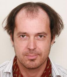 Dietmar Z. prima del trattamento
