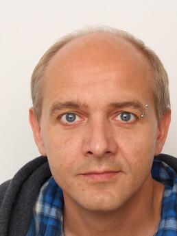 Hannes G. vor der Behandlung