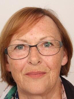 Edith W.  nach der Behandlung