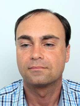Martin Nussbaumer prima del trattamento