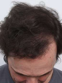 9 Monate nach der Haartransplantation