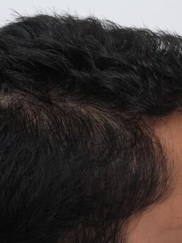 Rohit Singh nach der Behandlung