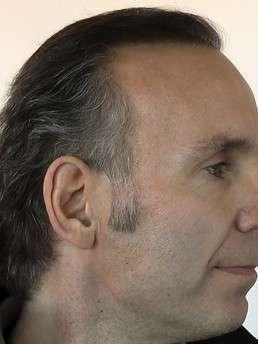 Helmut Grogger after treatment