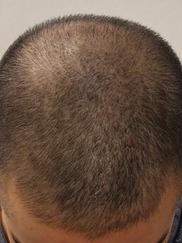 junger Mann vor Mikropigmentierung (STP)