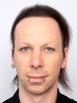 Florian Dürauer nach der Behandlung