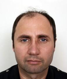 Josef Hess prima del trattamento