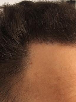 6 Monate nach der FUE Behandlung