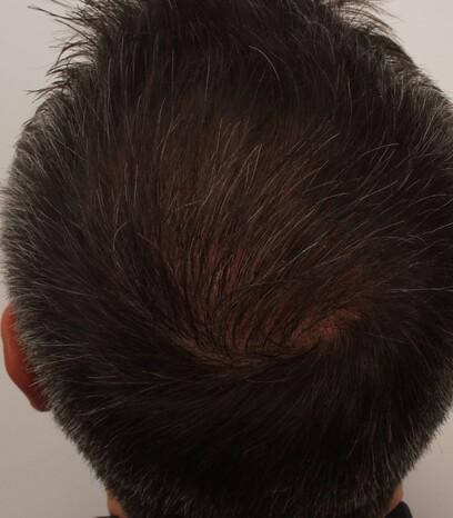 Ein Patient von Moser Medical nach seiner Haartransplantation zur Verdichtung des Haarbilds der Tonsur