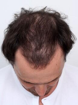 5 Monate nach der Haartransplantation