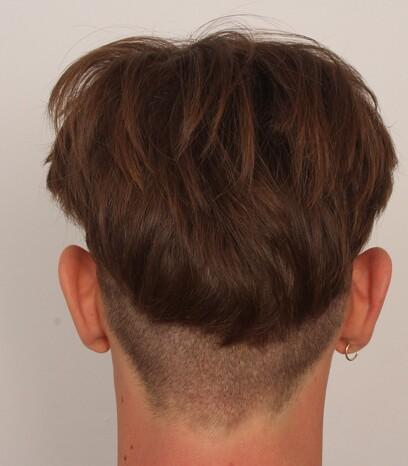 Der Entnahmebereich eines männlicher Patienten von Moser Medical nach der Haartransplantation mittels der FUE-Technik