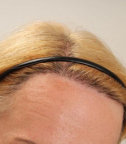 Eine zufriedene Patientin nach der Haartransplantation für Frauen mit der Streifenmethode von Moser Medical