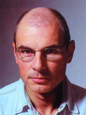 Ein Patient von Moser Medical vor seiner Haartransplantation im Jahr 1992