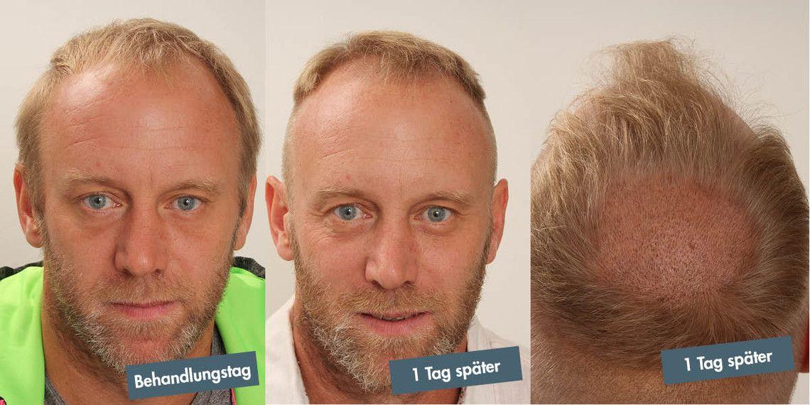 Stefan Koubek vor und 1 Tag nach seiner FUE-Behandlung