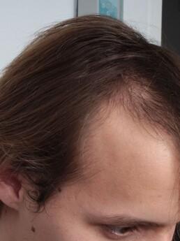 7 Monate nach der Behandlung