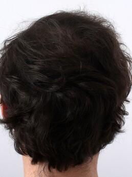 9 Monate nach der Haartransplantation