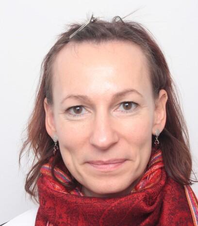 Eine Patientin von Moser Medical vor ihrer Eigenhaarverpflanzung im Stirnbereich bei Frauen