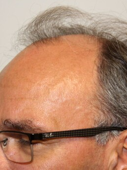 Erwin W. vor der Behandlung