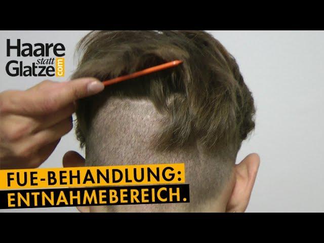 FUE-Haartransplantation: So sieht der Spenderbereich nach 6 Tagen aus