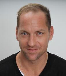 Beachvolleyballer Alexander Horst vor der Haartransplantation bei Moser Medical