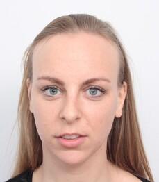 Sabrina T. prima del trattamento