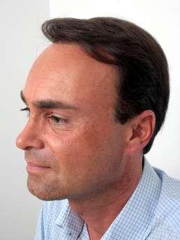 Martin Nussbaumer dopo il trattamento