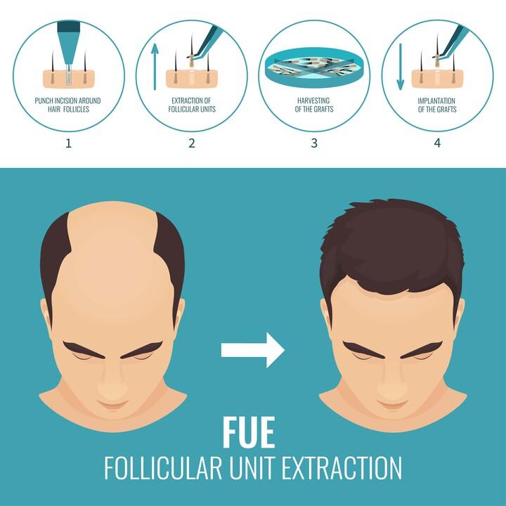 Skizzierung der FUE-Technik von Moser bei einem Mann mit Haarausfall