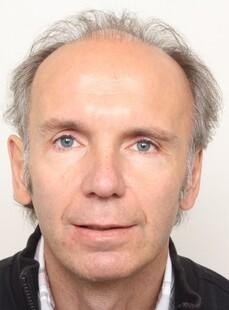 Helmut Grogger prima del trattamento