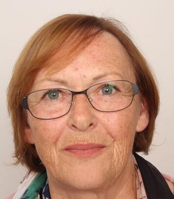 Eine Patientin über 50 nach Ihrer Haartransplantation bei Moser Medical