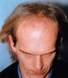 Peter Thurnhart prima del trattamento