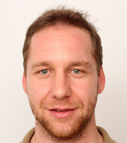 Der zufriedene Patient von Moser Medical ist für seine Haartransplantation extra von Bulgarien nach Wien gereist