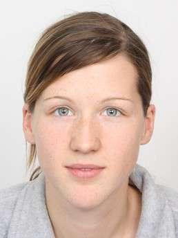Cornelia Ohrt before treatment