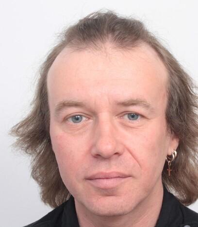 Ein Patient von Moser Medical vor der Haarverpflanzung an den Geheimratsecken