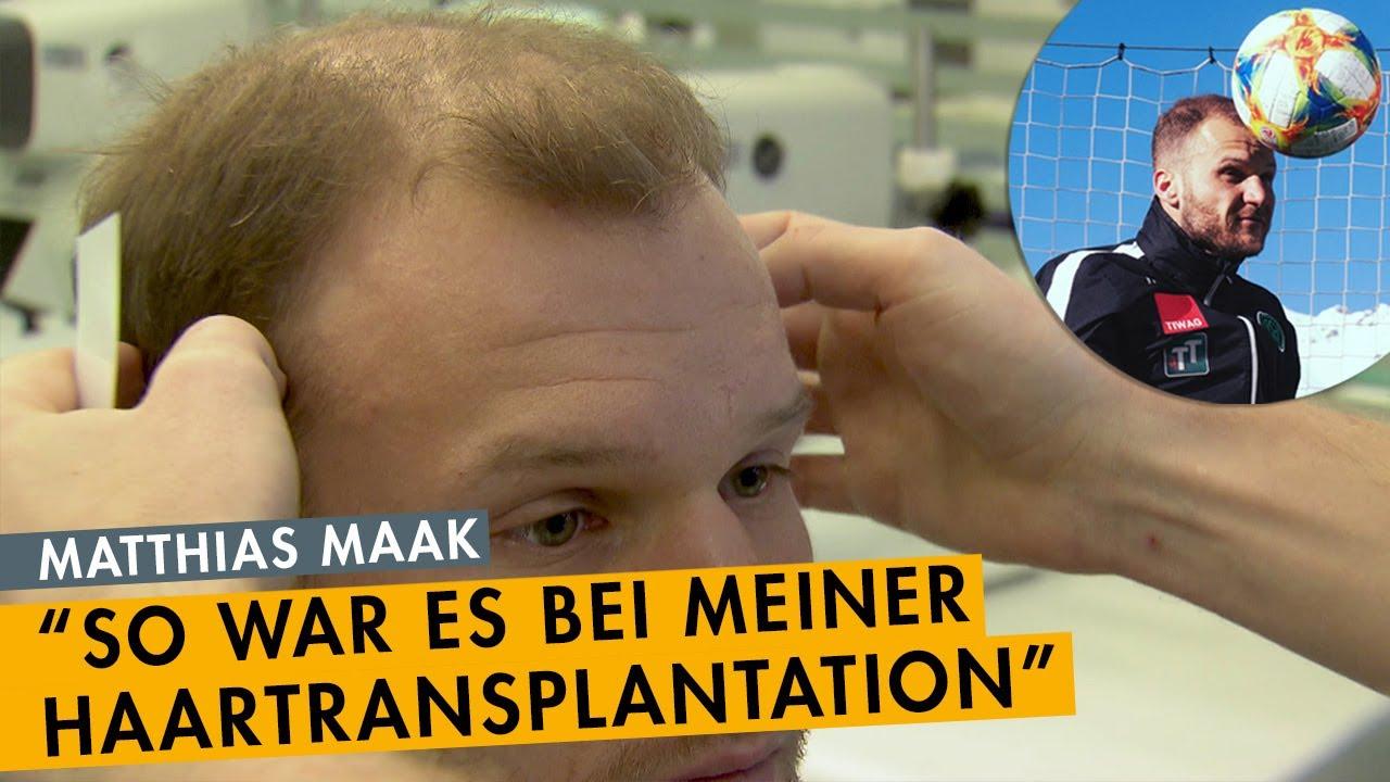 Matthias Maak - das Behandlungsvideo - Fussballprofi mit Haartransplantation