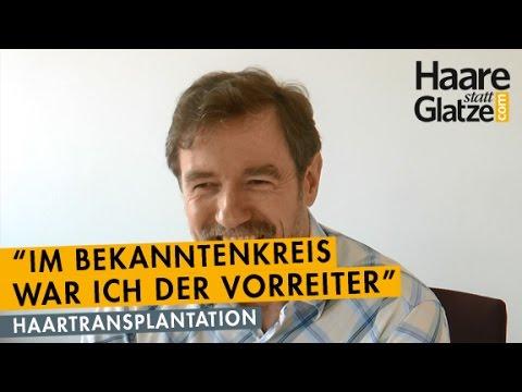 Haartransplantation: Erfahrungsbericht von Wolfgang Setzer