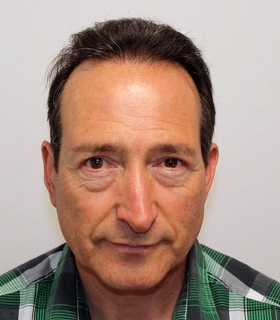 Ein Patient über 50 von Moser Medical nach seiner Haartransplantation der Tonsur, der Geheimratsecken und an der Stirn