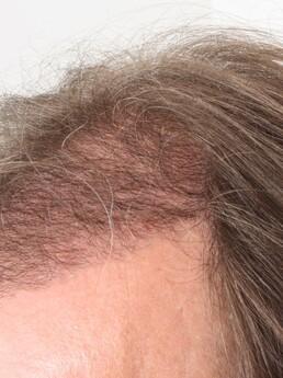 3 Monate nach der Haartransplantation