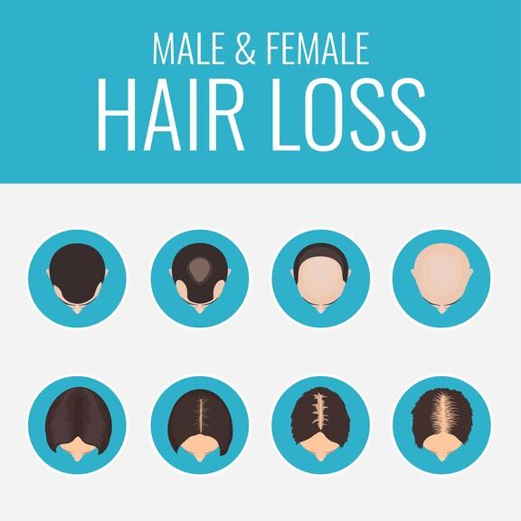 Die verschiedenen Arten von Haarausfall bei Frauen und Männern