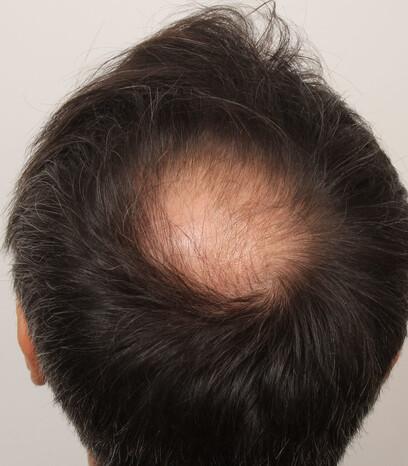 Ein Patient von Moser Medical vor seiner Haartransplantation zur Verdichtung des Haarbilds der Tonsur