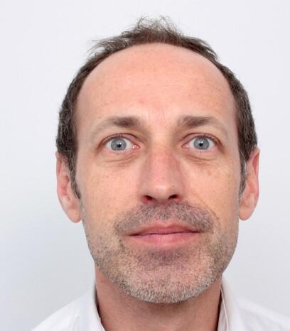 Ein Mann Mitte 40 vor seiner Haartransplantation am Stirnhaaransatz von Moser Medical