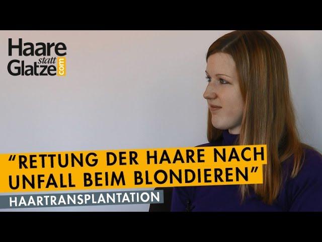 Nach Verätzung beim Blondieren: Haarverpflanzung rettete die Haare