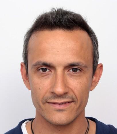 Ein Patient von Moser Medical nach seiner Haartransplantation bei Geheimratsecken