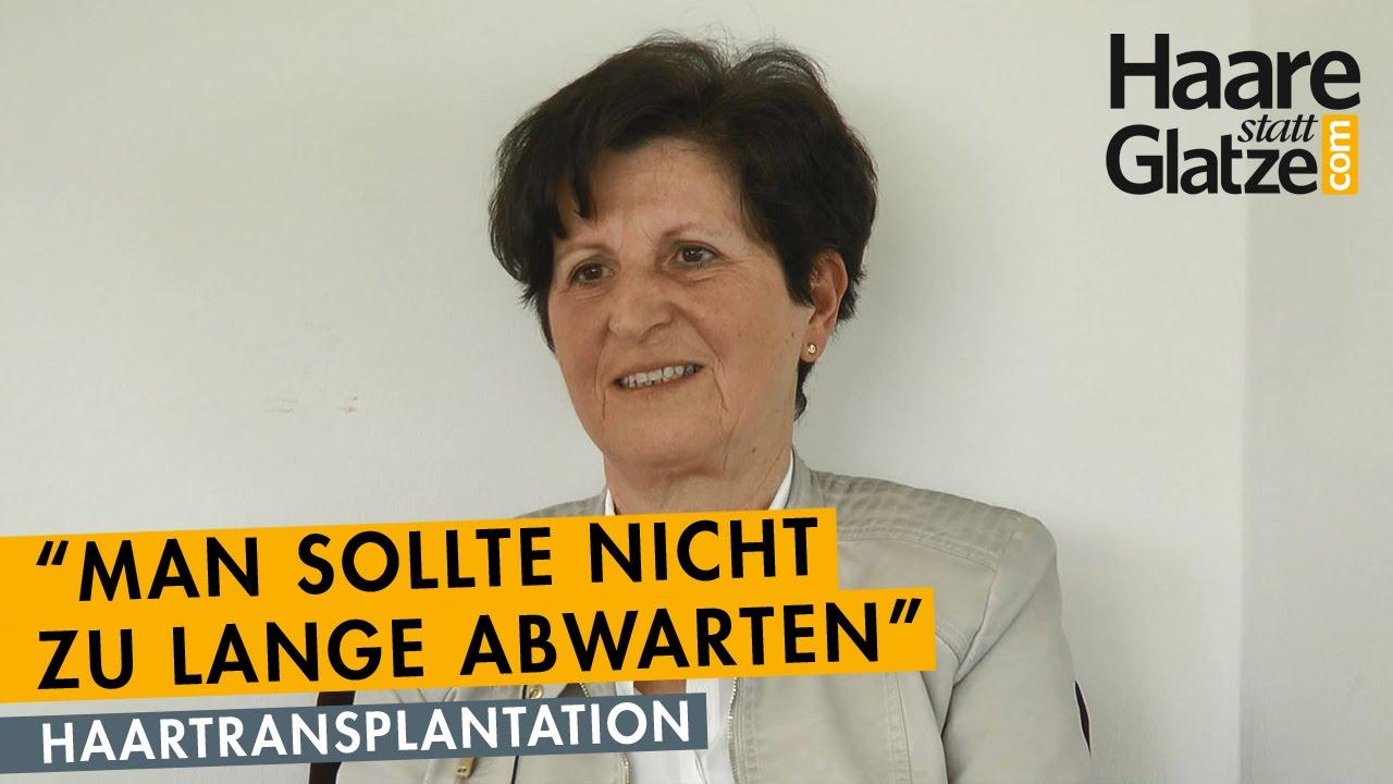 Vorher/Nachher-Ansichten: Haartransplantation bei einer Frau 50+
