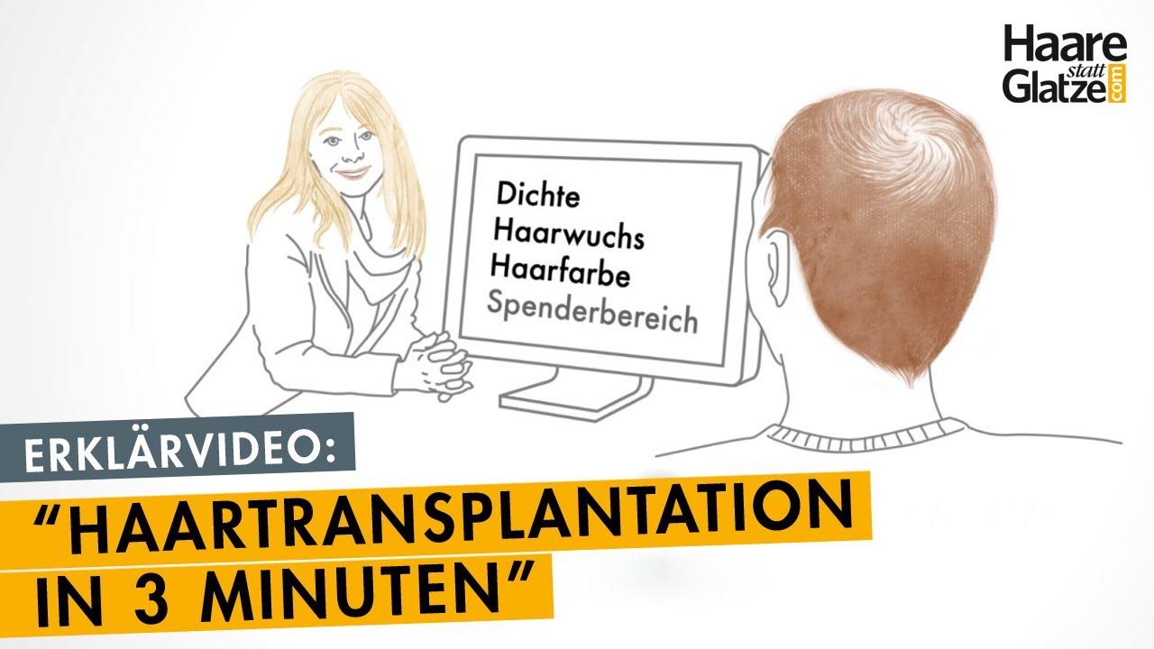 Haartransplantation in 3 Minuten erklärt - so funktioniert es.